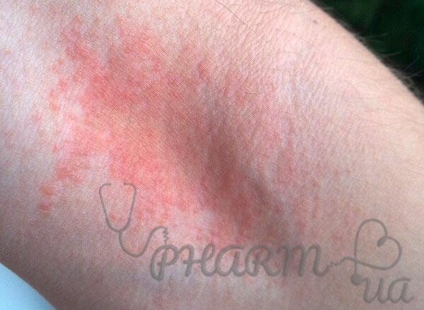 Атопический дерматит (АД)